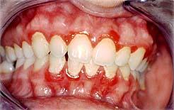 A piorréia, infecção bacteriana que inflama a gengiva, ataca os dentes e os faz cair. Dá um tremendo mau hálito ao sofredor.