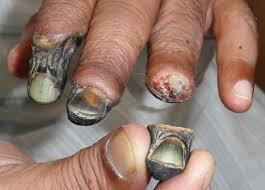 Imagine-se fazendo o que este infeliz faz: quebrando seus dedos gangrenados sabendo que isto vai acontecer em todo seu corpo até que morra em atroz agonia.