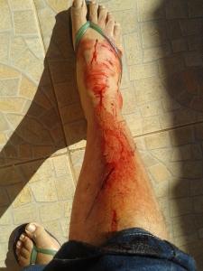 Um tombo da bicicleta a 35 km abriu uma vala em minha canela que expôs o osso. Demorou para sarar.